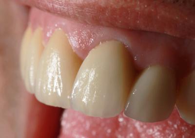Reabilitação estética e funcional envolvendo zircônia, e-max e implantes.