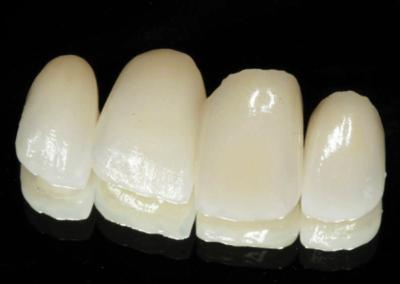 Case facetas laminadas de porcelana